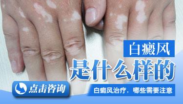 手脚白癜风发作是什么原因导致的